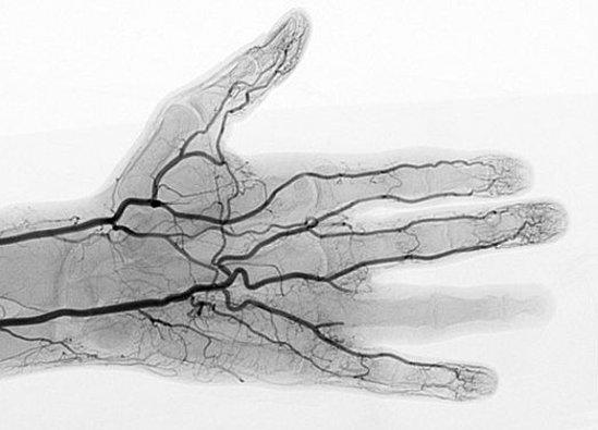 X光血管成像术