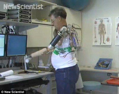假肢与胸部肌肉之间通过电线相连。
