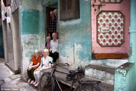 普兰一家都是白化病人,他们生活在德里的一居室公寓里