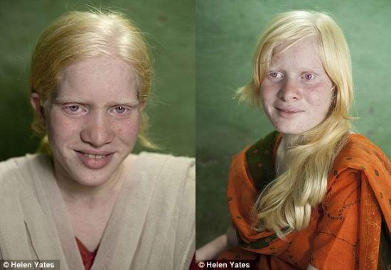 18岁的伯嘉和21岁的迪帕都是这个普兰家庭的一名白化病成员