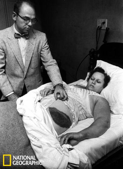 1954年,医生穆迪・雅各布(Moody Jacobs)展示他的病人――安・霍吉斯女士身上的一个大伤口,这是被陨石擦伤导致的