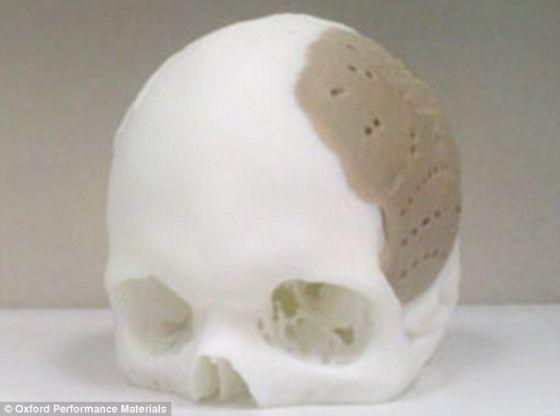 美国的一名患者成功接受一例具有开创性的手术,用3D打印头骨替代75%的自身头骨