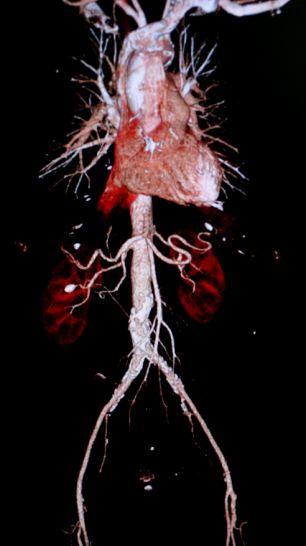 医生用新型CT扫描仪可获取患者器官3D图像