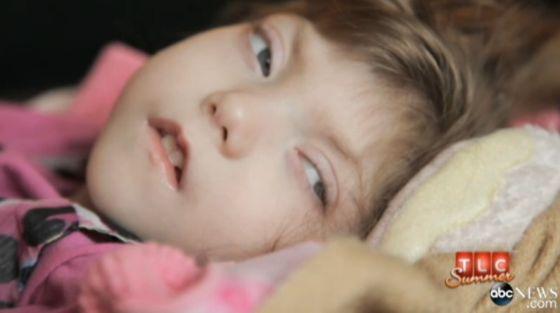 她患有一种罕见的疾病,导致发育速度迟缓。全世界只有极少数人患有这种疾病。