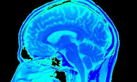 科技时代_英科学家用扫描技术成功读取大脑记忆(图)