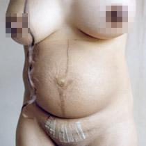 摄影师作品《怀孕,生产,母性》