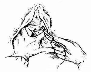 开始缝阴道粘膜