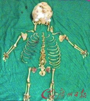 这是医生取出的骸骨。