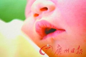 宝宝光睡不吃奶当心脑膜炎作怪
