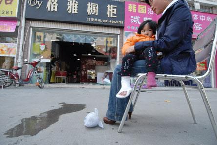 3岁小孩脚骨折