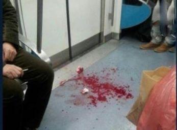 女乘客在地铁被划伤脸