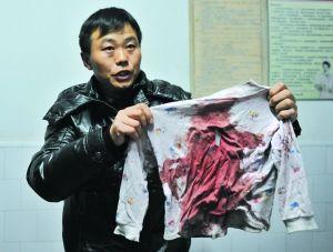 受伤学生张萌的家人在展示张萌当时所穿的衣服