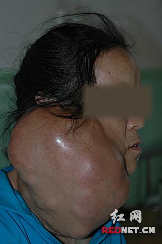 老妪右脸肿瘤比头大 常被孩子像怪物追着看