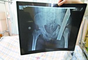 男的捅阴道电影_> 正文     图为铁通整根插进屁股的x光片.