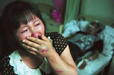 昨日,沈文芳说,她的哥哥和丈夫都被打伤了,自己的手和胳膊也被打伤 华商报记者 苗波 摄