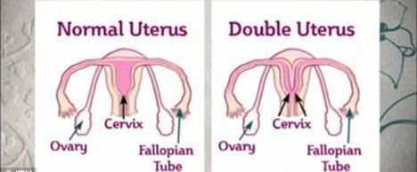 天马幻想双子宫攻略图_英国女子长有双子宫双阴道 医生称几率仅百万分之一