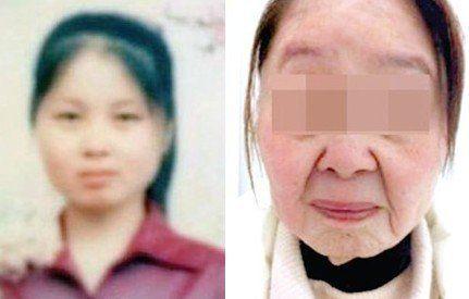 """郑州80后女孩生孩子后迅速衰老变""""老太太"""""""