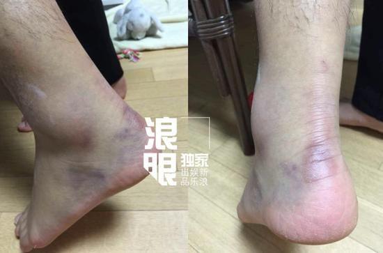 黄子韬脚伤