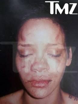 蕾哈娜被打面部照片曝光警局急追泄图人(图)