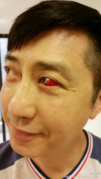 哈林庾澄庆眼球血管爆裂