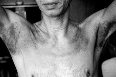 南京体验营,一名学员被拍打出大片血印。萧宏慈称这是痧,拍打出来能治病。