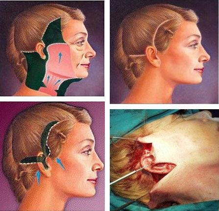 解惑电波拉皮 与拉皮手术无关系