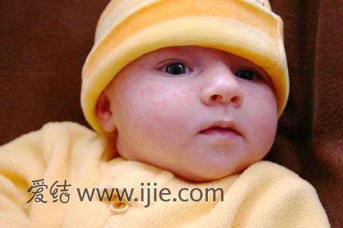原发型粟丘疹从新生儿开始发生,由未发育的皮脂腺形成,损害可自然消失